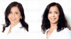 Hormonal Regeneration® by DDr. Heinrich an einer Patientin (51)